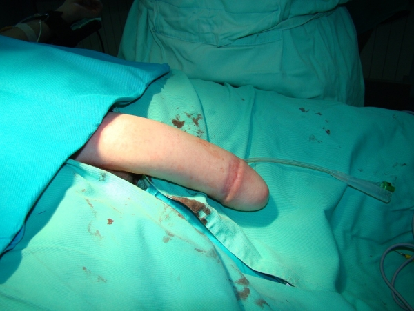 How Male To Female Surgery Works