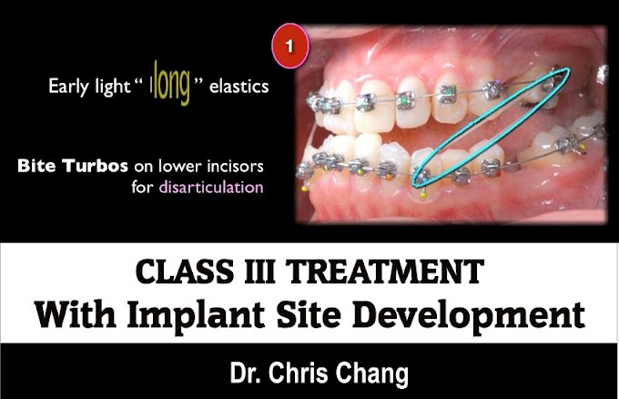 CLASS III TREATMENT with Implant Site Development - Dr. Chris Chang