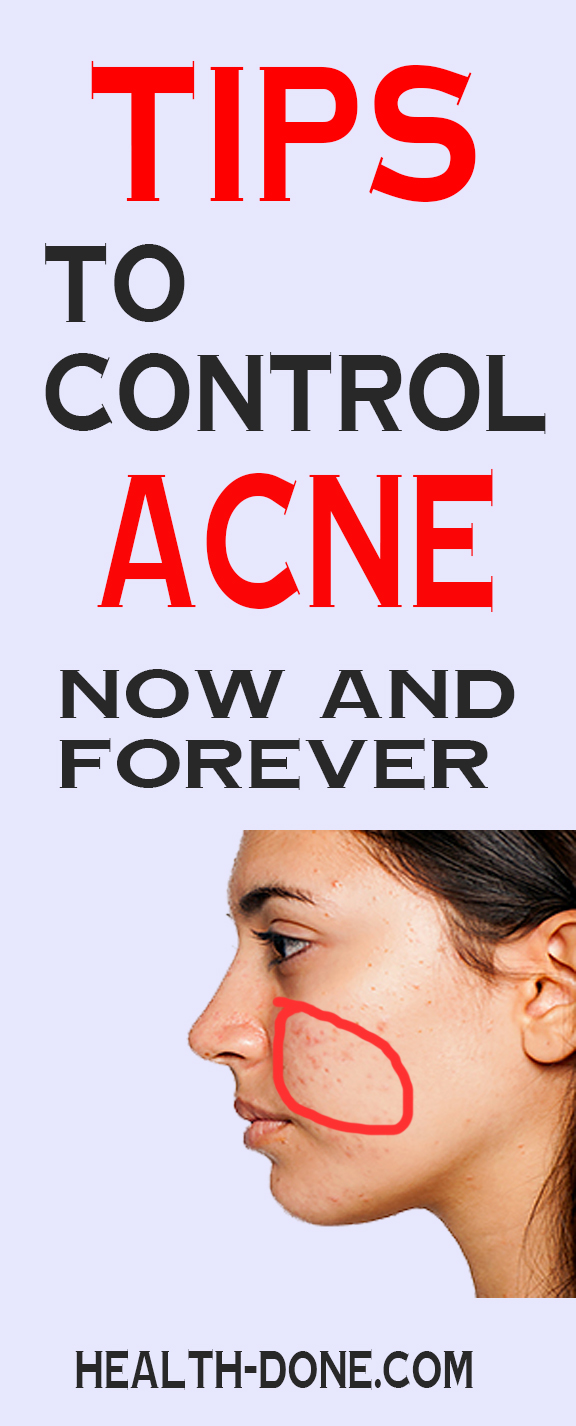 TIPS TO CONTROL ACNE NOW AND FOREVER