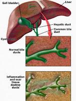 ciroza autoimuna