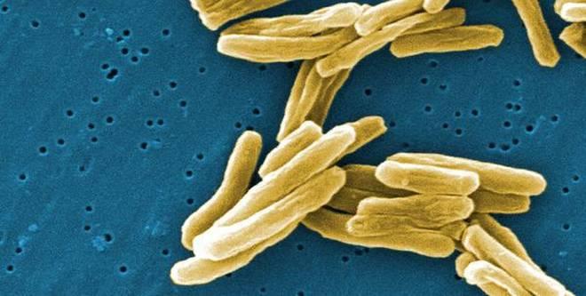 Filter-based kits developed for TB diagnosis, drug-resistance testing