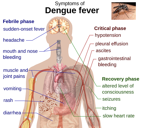 Dengue Fever vaccine - Dengvaxia By Sanofi Cleared By Mexico