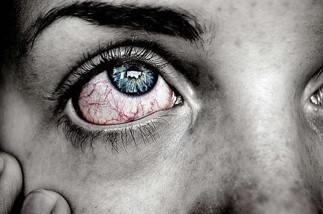 أعراض ارتفاع ضغط العين المفاجئ اسبابه وطرق العلاج