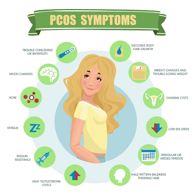 How to lose weight in PCOS with only diet and exercises