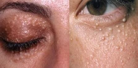 Cara Menghilangkan Bintik Di Bawah Mata Dan Kelopak Mata Sampai Tuntas