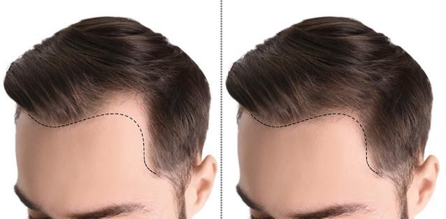 Le migliori tecnologie per il restauro dei capelli del 2021