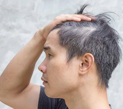 Nguyên nhân dẫn đến tóc bạc sớm