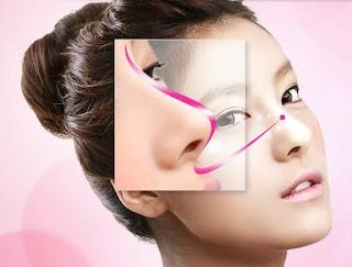 Bị viêm xoang có được phãu thuật chỉnh hình mũi không