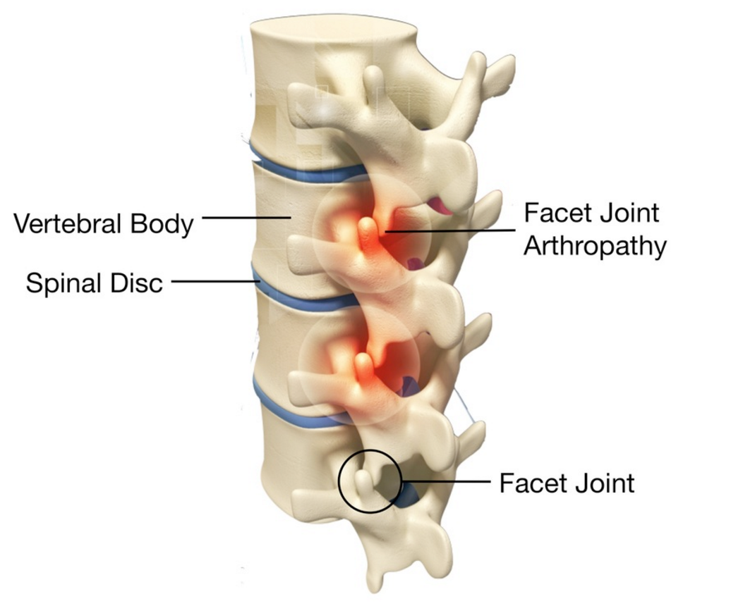 """Is This """"Facet Joint"""" Back Pain Jason Day Describes Real ..."""