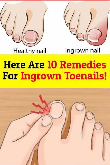 10 Remedies for Ingrown Toenails