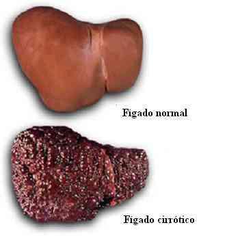 Doenças hepáticas