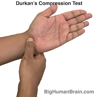 This test is used to diagnose median nerve compression in carpal tunnel syndrome. Patient experiences the symptoms on prolonged compression of the nerve.