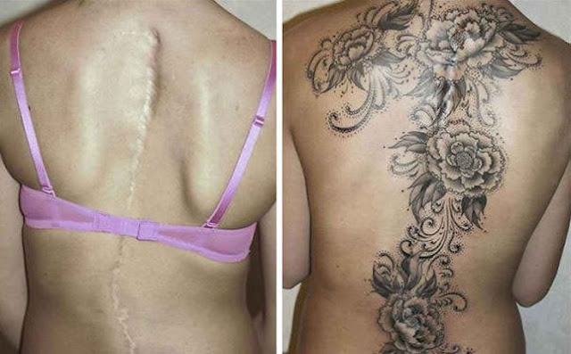 LOOK: Tattoo Artists Create A Masterpiece By Covering Up These Huge Scars With A Stunning Tattoo!