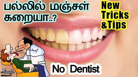 Tricks & tips | No Dentist | Tamil health tips