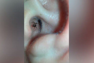 The deadly spider crawls out of the man's ear