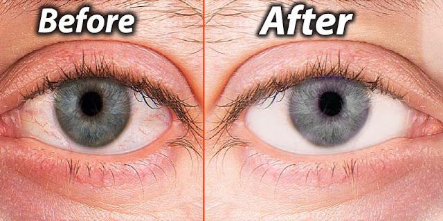 Dry eyes ka ilaj-Home remedies for dry eyes