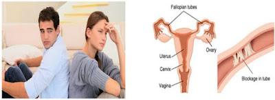 https://www.altiushospital.com/Hysteroscopic-Tubal-Cannulation-Treatment.html