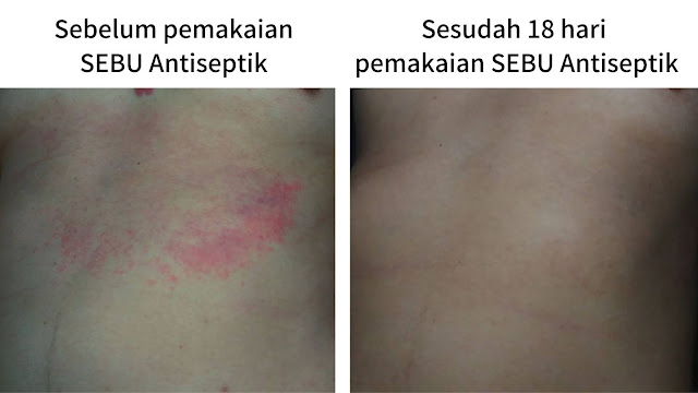 Before After pakai SEBU Antiseptik