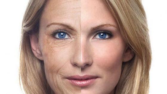 3 Masalah Kulit Wajah Yang Sering Terjadi Saat Memasuki Usia 30 Tahun
