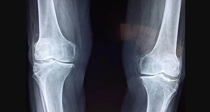 What Living With Rheumatoid Arthritis Means