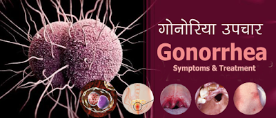 गोनोरिया उपचार Gonorrhea Treatment in Hindi