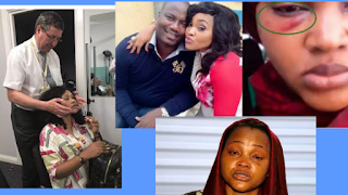 IMAGES OF MERCY AIGBE AFTER SURGERY