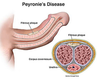 A clinical manifestation of a patient with Peyronie disease pictures