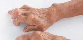 Gichtknoten-am-finger in Gichtknoten