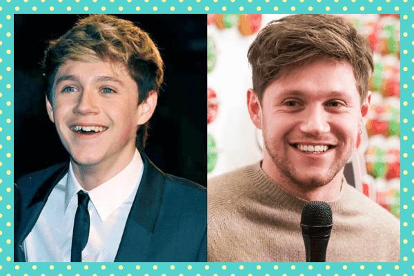 Niall Horan Eski Yeni Dişleri