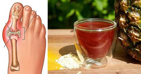 remedios acido urico alto gota empeine del pie causas de acido urico en la sangre