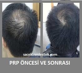 prp saç tedavisi yaptıranlar 19