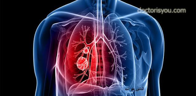 الدكتور هو أنت اضرار التدخين على الرئتين امراض الرئة بسبب التدخين انواع سرطان الرئة اعراض سرطان الرئة المتقدمة علاجات سرطان الرئة العلاج الكيميائي لسرطان الرئة هل يشفى مريض سرطان الرئة الاقلاع على التدخين
