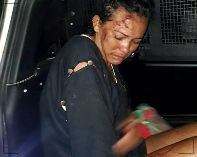 POLICIA:Filha mata pai de 62 anos com golpes de faca após discussão, em Itapipoca