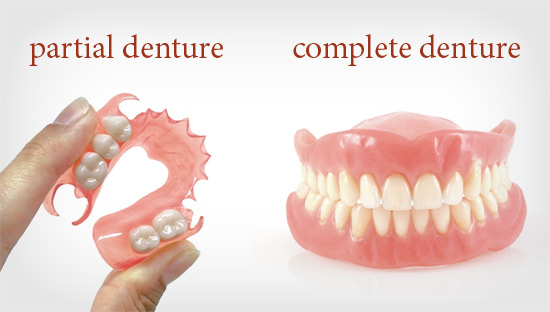 Your Ultimate Guide to Dentures and Tooth Replacement
