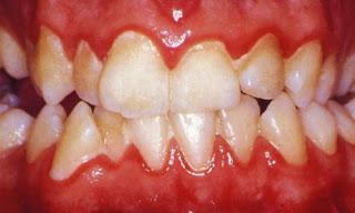 hamilelikte-dis-bakimi-gingivitis