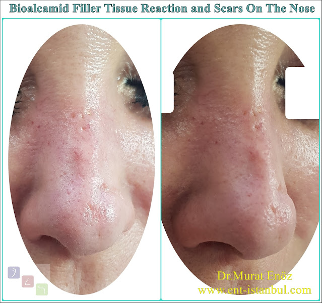 Damages of fillers containing polyalkylimide bioalcamid,Delayed immune response and tissue reaction due to permanent dermal fillers,Damages of permanent nose filler,Risks of permanent nose fillers,