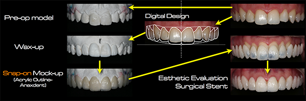 Digital Smile Design Скачать