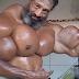 Homem arrisca a vida injetando óleo nos braços para ficar igual o Hulk
