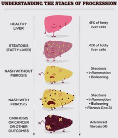 Stages in Liver disease