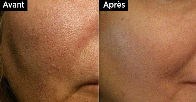 Comment faire un toner naturel pour fermer les pores et dire adieu aux points noirs