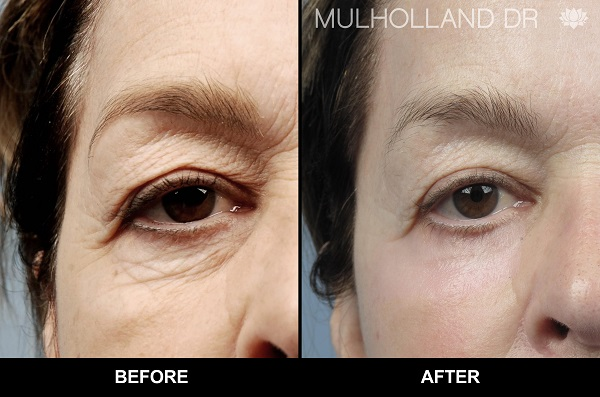 Blepharoplasty Eyelid Surgery Before and After at SpaMedica Toronto