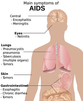 What is HIV AIDS | HIV AIDS Symptoms