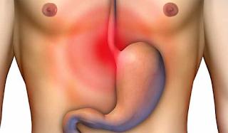 Γαστροοισοφαγική παλινδρόμηση: Τι να πιείτε για το στομάχι
