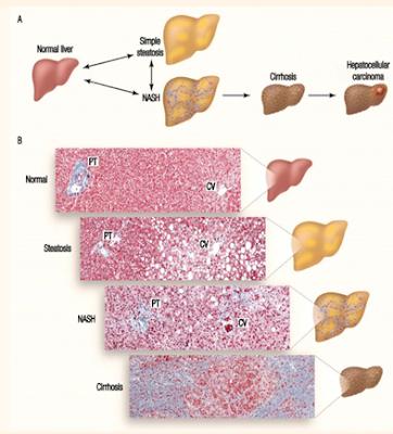 sirosis hati, sirosis liver, non alcoholic liver disease