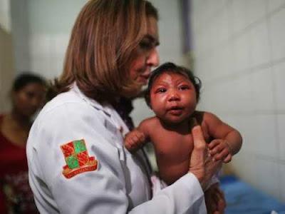 Virus Zika có phải thủ phạm gây teo não?Virus Zika có phải thủ phạm gây teo não?