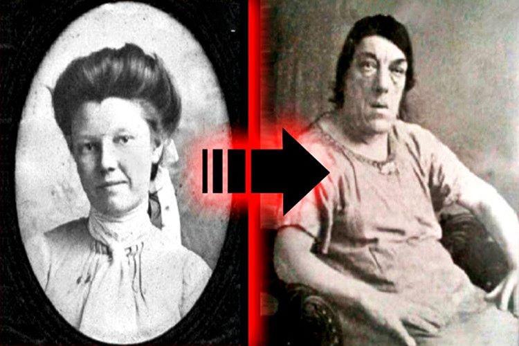 Dünyanın en çirkin kadını Mary Ann Bevan'ın sağlığı ilk başlarda önemli görünmüyordu yalnızca yüzü, elleri ve ayaklarında şişlikler vardı.