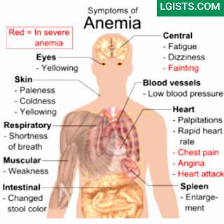 symptoms of anaemia in female