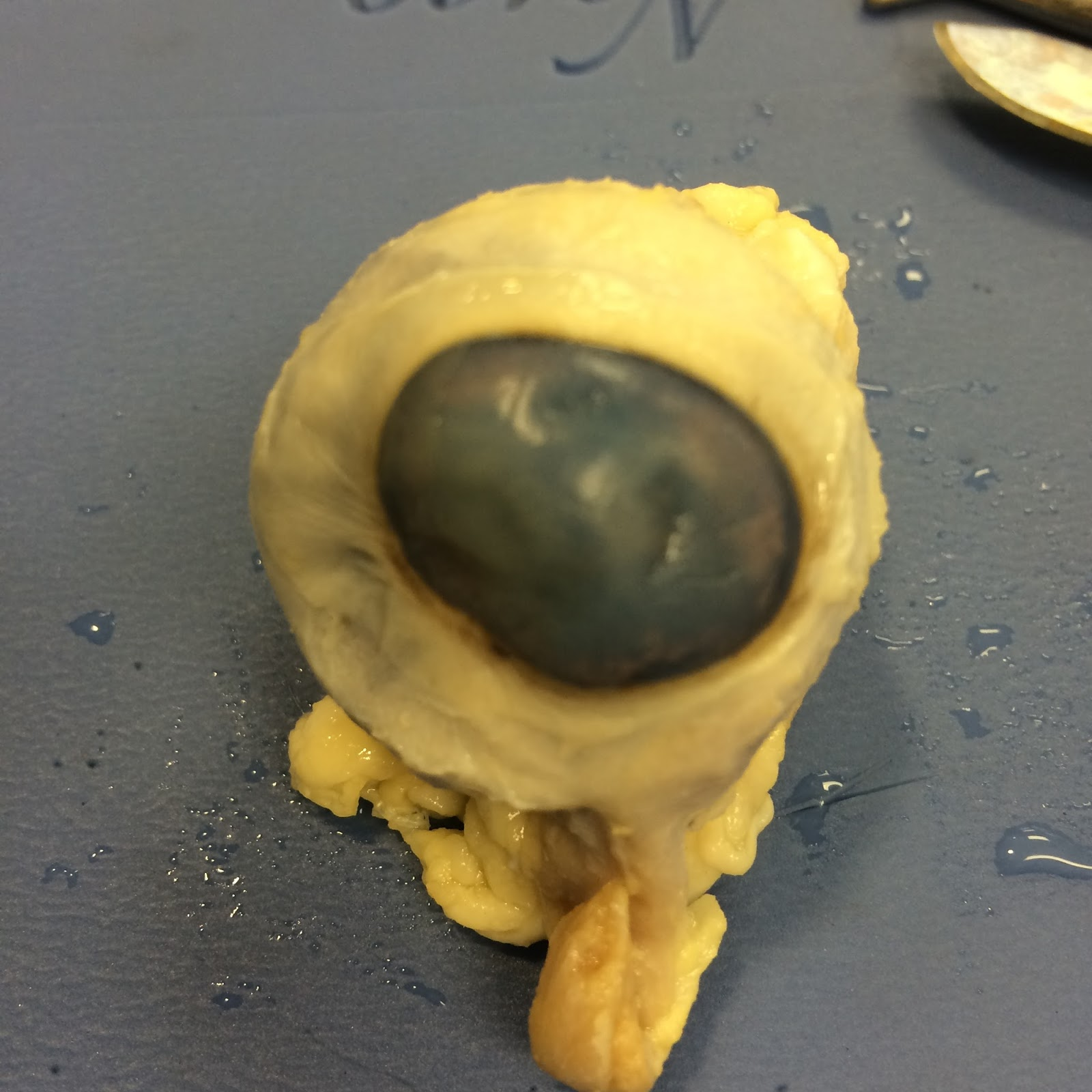 Anatomy Sheep Eye Dissection Labeled