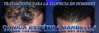 Micropigmentación capilar Fuengirola