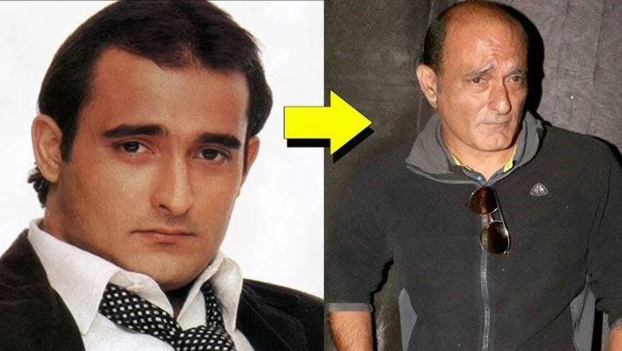 actor-gone-bald